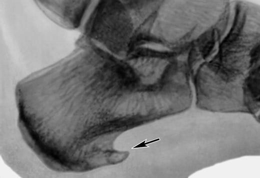 Ефективність лікування шпори на п'яті рентгеном