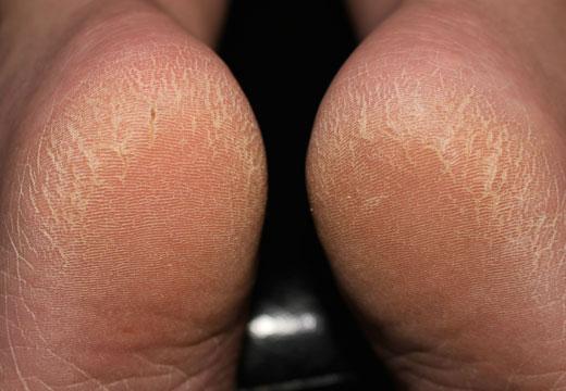 Чому сохне шкіра на п'ятах і як позбутися від шорсткості в домашніх умовах