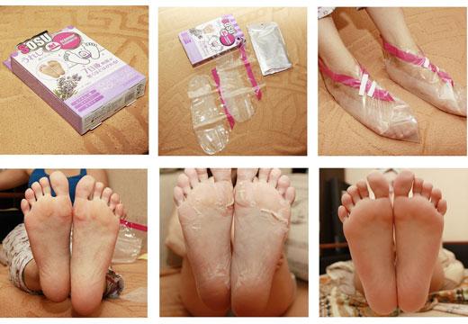 Особливості використання відлущування маски у вигляді шкарпеток для ніг