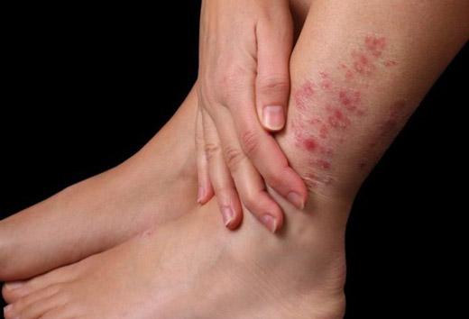 Яка мазь допоможе від бешихи ноги