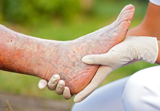 Симптоми гангрени нижніх кінцівок, етапи розвитку та методи лікування