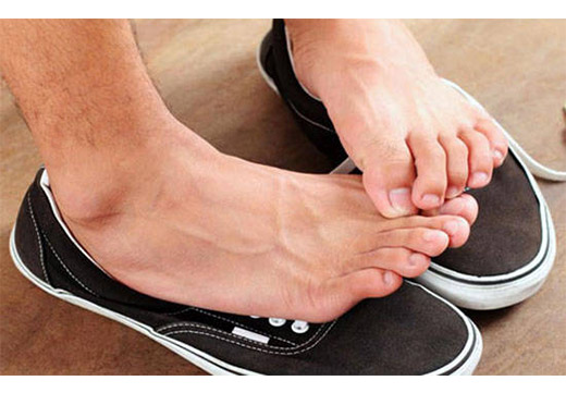 Сильно потіють ноги: причини і методи лікування