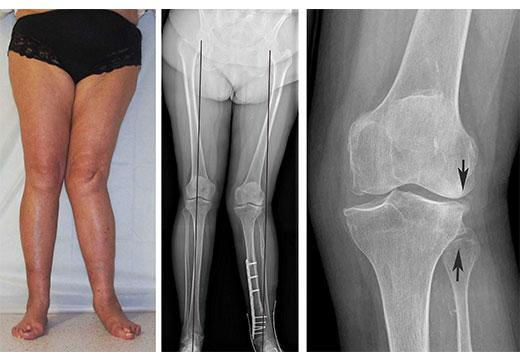 Особливості та лікування вальгуса колінних суглобів у дітей і дорослих