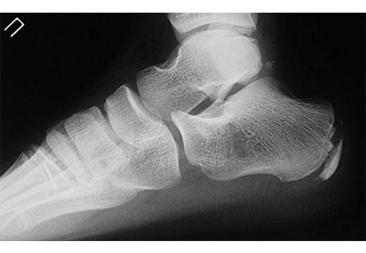 Деформація Хаглунд: причини появи і лікування шишки на п'яті збоку