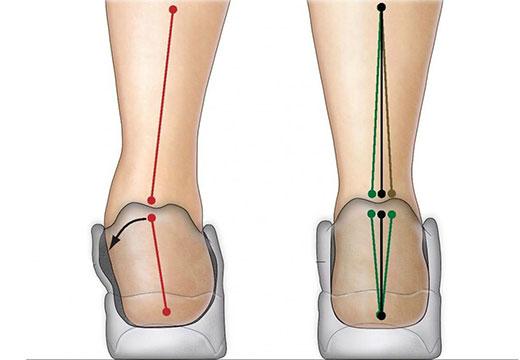 Причини появи гіпопронаціі, методика лікування і необхідність ортопедії (кросівки, устілки)