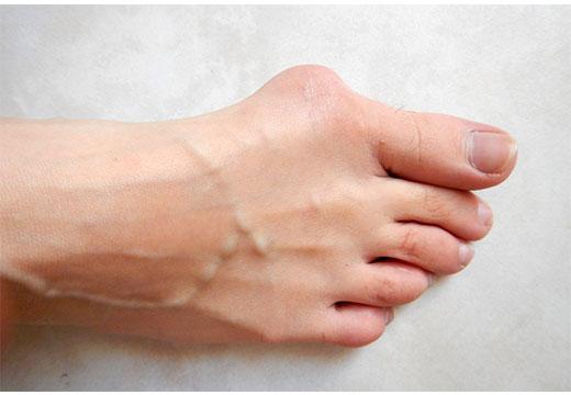 Що таке халюс вальгус: причини, діагностика та лікування