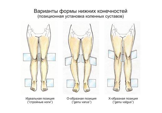 Вальгусна і варусна деформація стопи: основні відмінності і ознаки