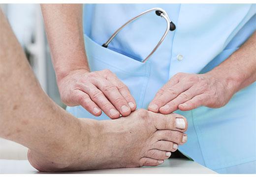 Як лікувати вальгусную деформацію стопи у дорослих: огляд засобів та безопераційних методів