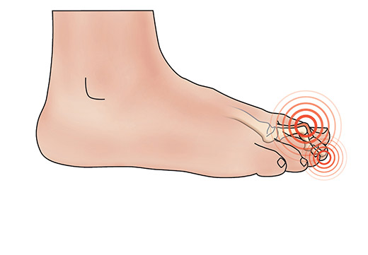 Причини появи наросту на нозі біля великого пальця і методи його видалення