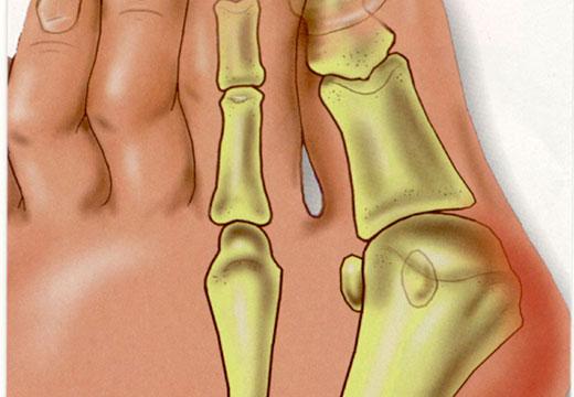 Кісточка у великого пальця ноги болить і зростає: що робити і як лікувати