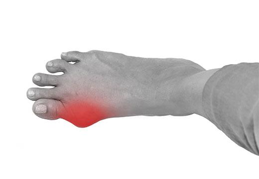 Чому запалюються кісточки великого пальця ноги і як зняти біль