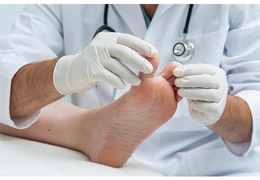Що таке кінська стопа: причини, симптоми і методи лікування