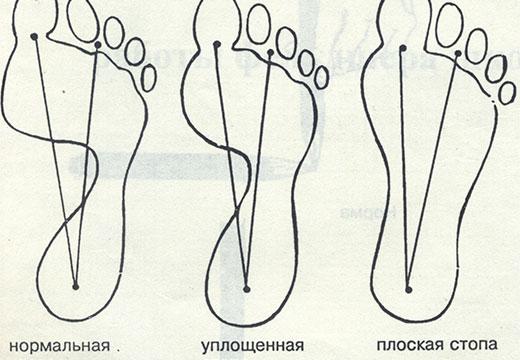 plantografiya1