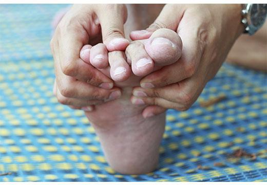 Причини викривлення великого пальця: як діагностувати і вилікувати