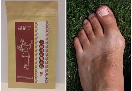 Огляд популярних пластирів від кісточок на ногах: правила вибору і використання