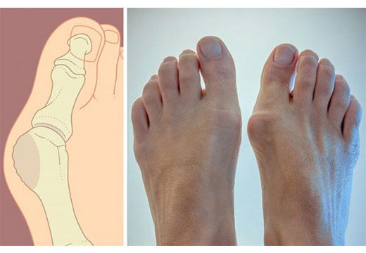 Чому може боліти кістка на нозі біля великого пальця і як її зменшити
