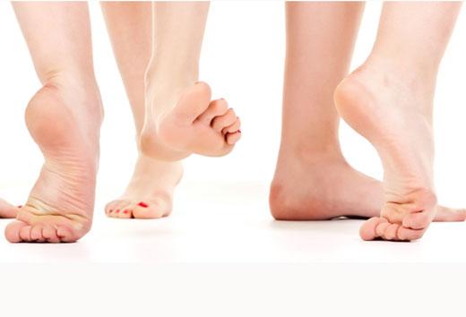 Причини появи і методи позбавлення від плям на п'ятах і стопах ніг