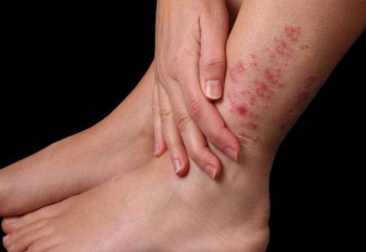Особливості псоріазу на ногах і методи його ефективного лікування