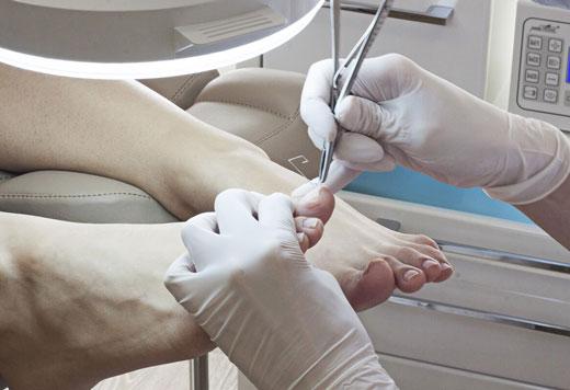 Як в домашніх умовах вилікувати нарив на пальці ноги