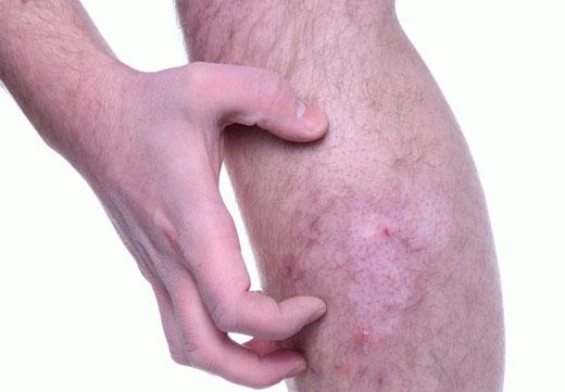 Шкірні захворювання стоп і ніг: види, особливості та симптоми