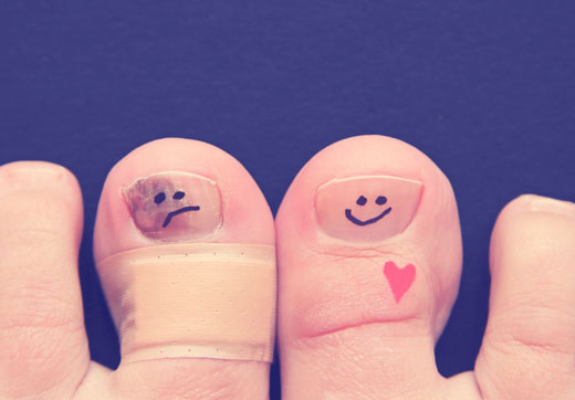 Печіння пальців ніг: причини, лікування і профілактика