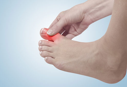 Як лікувати панарицій на пальці ноги в домашніх умовах