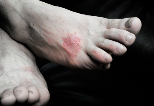 Алергія у вигляді висипки на ногах: причини появи і методи лікування