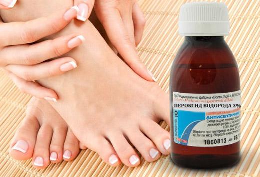 Лікування перекисом тріщин на ступнях і п'ятах: особливості та правила