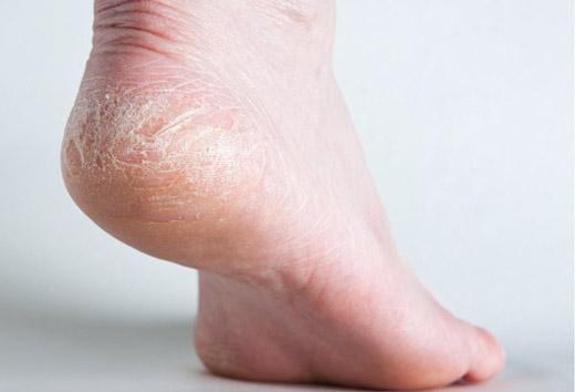 Чому на ступнях облазить і лущиться шкіра і що при цьому робити