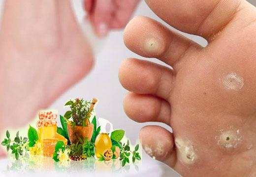 Огляд народних рецептів для лікування мозолів на пальцях ніг