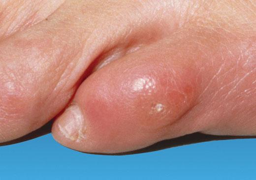 Мозоль на пальці ноги: огляд аптечних засобів і домашніх методів лікування