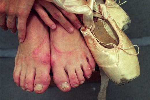 Як і чим швидко вилікувати мозолі від взуття аптечними і домашніми засобами