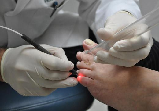 Лазерне видалення шіпіци: ефективність і особливість процедури