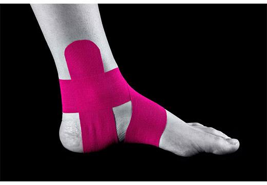 Ефективність тейпірованіе стопи при плоскостопості у дітей і дорослих