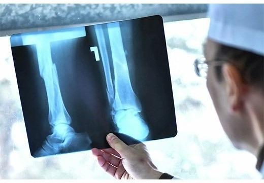 Ефективність рентгенографії при виявленні ступеня плоскостопості