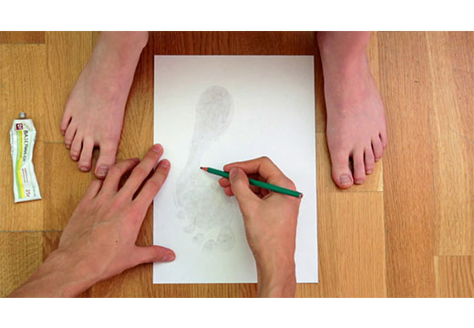 Методи лікування плоскостопості у дорослих: огляд дієвих способів
