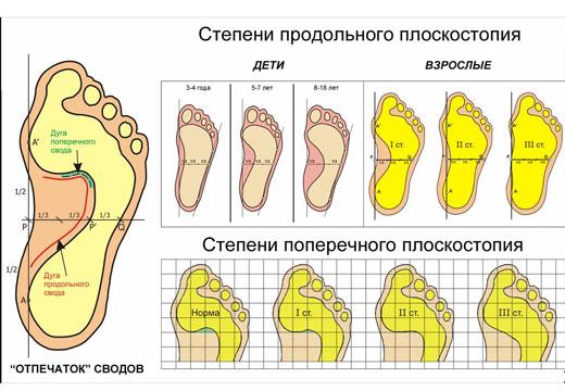 Які є види і форми плоскостопості, їх діагностика і визначення