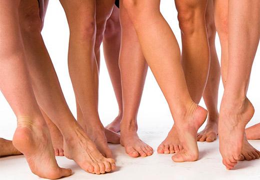 Що таке поздовжня плоскостопість: ступеня, симптоми деформації і методи лікування