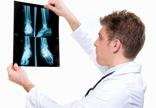 Який лікар лікує плоскостопість у дорослих і дітей