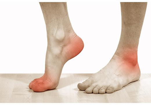 Болі в ногах при плоскостопості у дорослих: що робити і як лікувати